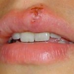 Herpes simplex : cos'è?