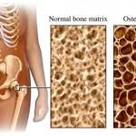 Osteoporosi: come combatterla?