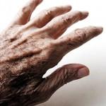 Migliora la terapia contro il Parkinson