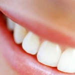Denti bianchissimi: come ottenerli?