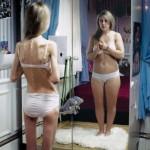 Anoressia nervosa. La malattia del nostro tempo