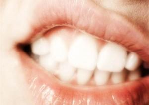 Afte della bocca: i rimedi fai da te
