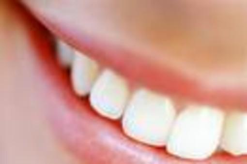 Denti: più bianchi in modo naturale