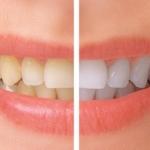 Come risparmiare sullo sbiancamento dei denti